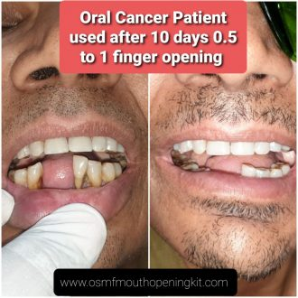 Mouth cancer Oral Submucous Fibrosis OSMF mouth opening kit treatment in Gujarat